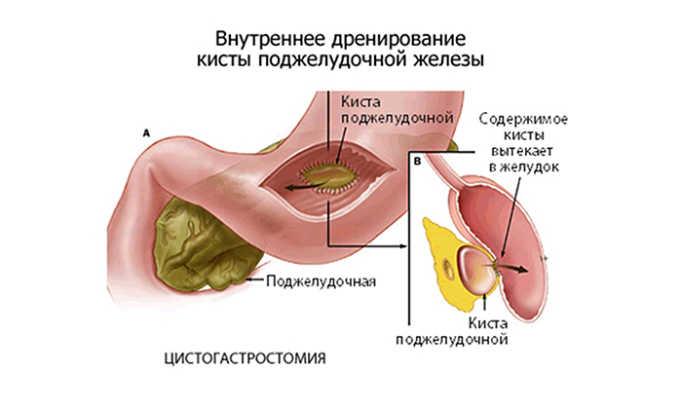 Операция показана в случае развития опасных осложнений: абсцессов, обширных областей некроза, крупных кист, перекрытия желчевыводящих протоков, скопления большого количества воспалительного экссудата