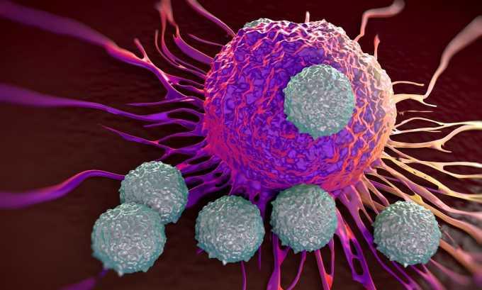С помощью МРТ поджелудочной железы можно увидеть злокачественную опухоль и наличие метастазов