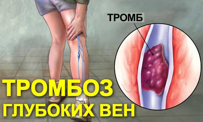 В список расстройств, при которых рекомендуется применять средства на основе льна входи тромбоз