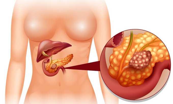 Пересадка поджелудочной железы при панкреатите