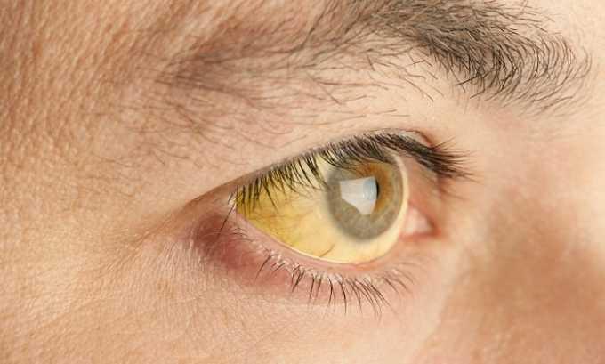 Анализ на количество эластазы назначается при желчнокаменной болезни, желтухе и болезни Крона