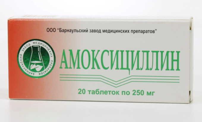 При тяжелой форме протекания воспаления назначают Амоксициллин