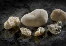 Камень в поджелудочной железе: нужна ли операция?