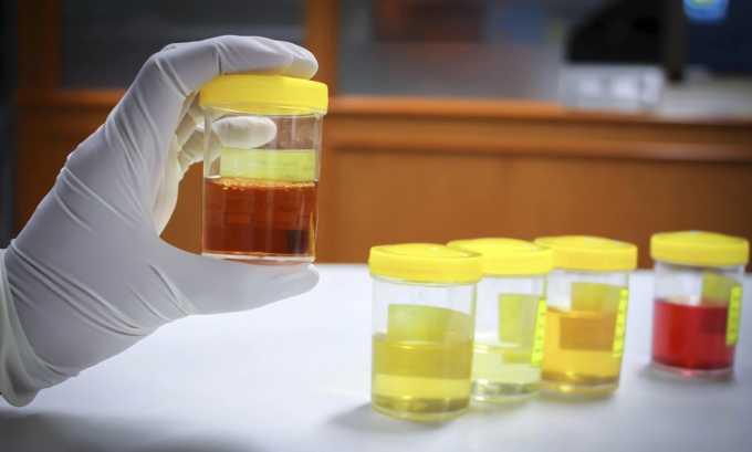 При заболеваниях печени у человека может произойти потемнение урины