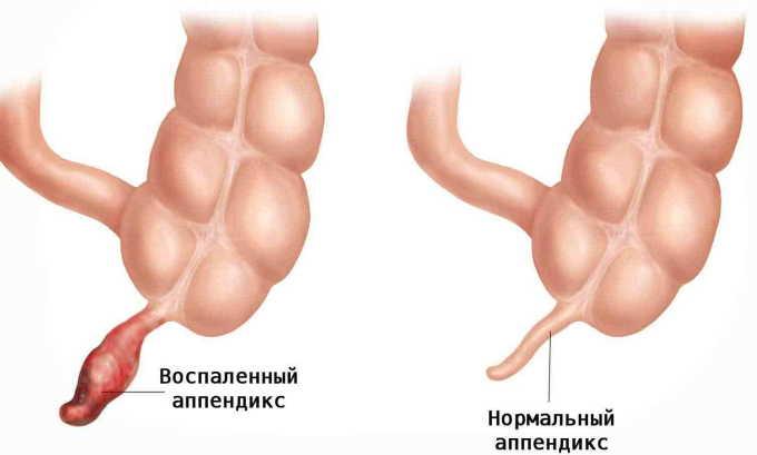 У многих людей сопровождается жжением в правой стороне живота аппендицит