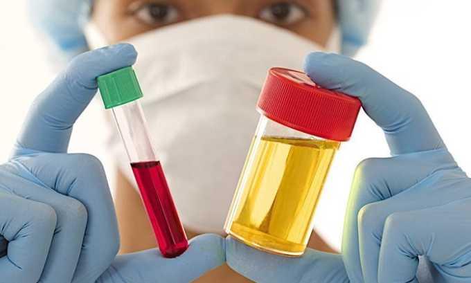 Важную диагностическую роль играет проведение общеклинических и биохимических анализов крови и мочи
