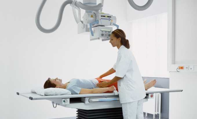 Диагностировать заболевание поджелудочной поможет рентген брюшной полости