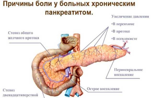 Течение хронического панкреатита сопровождается изменениями в клеточной структуре железы, нарушением секреции пищеварительных ферментов
