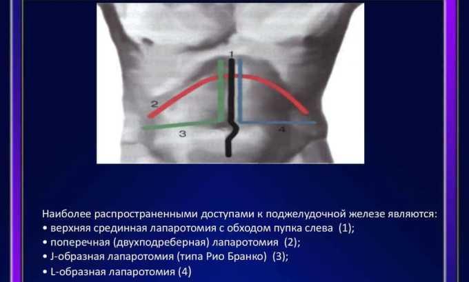 Лапароскопический метод операции используют, когда вырезают часть головки, тела или хвост