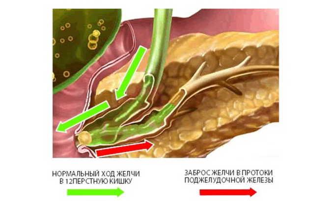 Наличие воспаления обусловлено образованием конкрементов в желчном пузыре. В данном случае происходит обструкция (закупорка) протоков железы