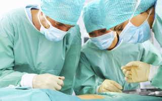 Как проводят операцию при остром панкреатите?