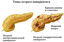 Типы острого панкреатита