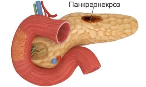 Осложнением панкреатита может стать панкреонекроз - полное разрушение поджелудочной железы, а также рак