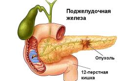 Схема опухоли поджелудочной железы