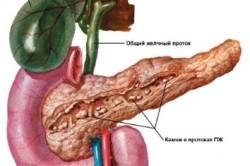 Расположение камней в поджелудочной железе