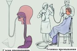 Схема промывания желудка