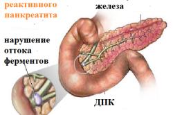 Схема реактивного панкреатита