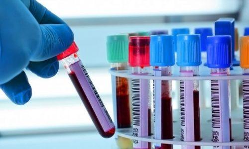 К эндокринологу чаще всего направляет терапевт, если предварительные анализы показали повышенное содержание глюкозы в крови