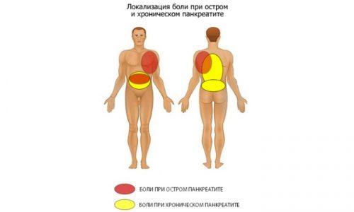 Основной признак панкреатита у мужчин - сильные боли в эпигастральной области. При острой форме заболевания они имеют режущий характер, при хронической - тупой