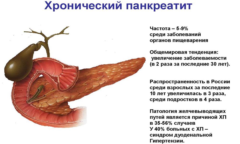 Лечение обострения хронического панкреатита зависит от тяжести протекания патологического процесса