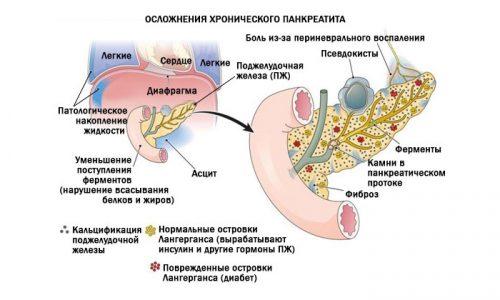 Панкреатит у мужчин имеет опасные последствия, которые способны привести к летальному исходу