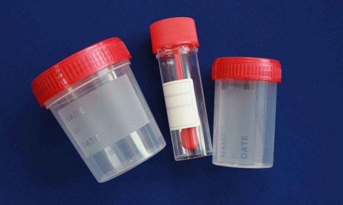 Для сбора мочи приобретают специальные одноразовые стерильные контейнеры с крышкой, которые можно купить в аптеке