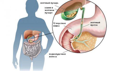 Поджелудочная железа и желчный пузырь тесно связаны между собой. Своевременная ликвидация непроходимости желчных протоков, вызванная наличием камней, способствует оздоровлению поджелудочной железы