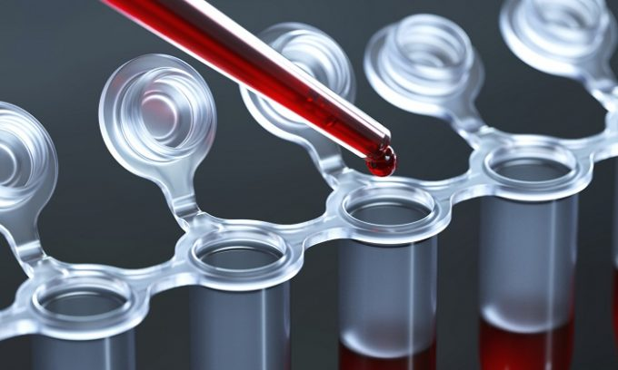 Эндокринолог в ходе диагностики может назначить человеку, сдать общий анализ крови