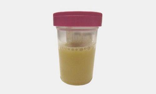 Темная урина бывает из-за повышенного количества билирубина. Коричневая жидкость указывает на гепатит, который может быть причиной воспаления поджелудочной железы