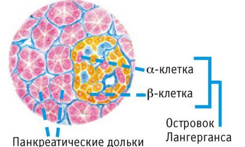 Разрастание тканей злокачественного образования в железе приводит к повреждению островков Ларгенганса