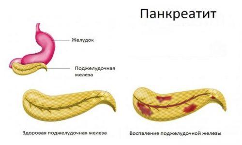 Панкреатит это заболевание при котором наблюдается воспаление поджелудочной железы