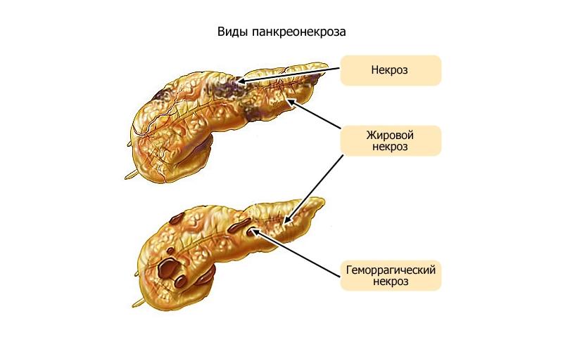 Патологический процесс в поджелудочной железе данного генеза является осложнением острого панкреатита и сходен по начальным признакам с синдромом острого живота