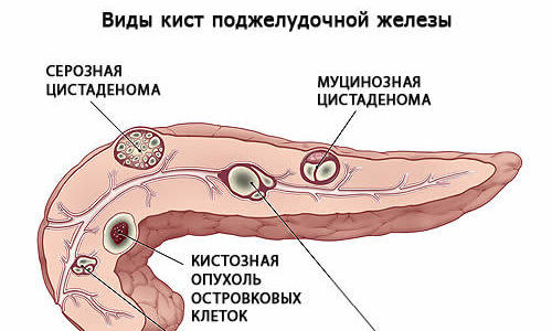 Доброкачественную опухоль нередко ошибочно принимают за кисту, которая представляет собой полость с жидким содержимым