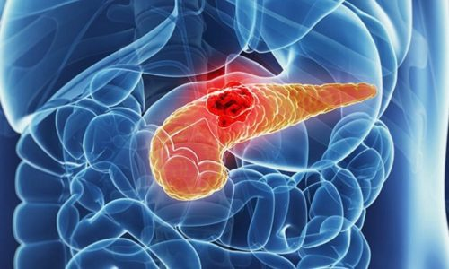 Реактивные изменения поджелудочной железы возникают на фоне заболеваний желудка, кишечника, печени и других отделов системы пищеварения