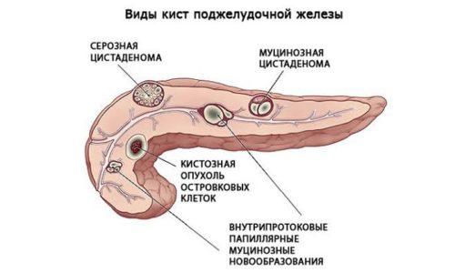 Врач определяет какое подобрать лечение, в зависимости от величины и вида кисты и сопутствующих заболеваний