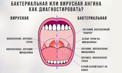 Сухость и горечь в горле может возникать при инфекционных заболеваниях, например, ангине