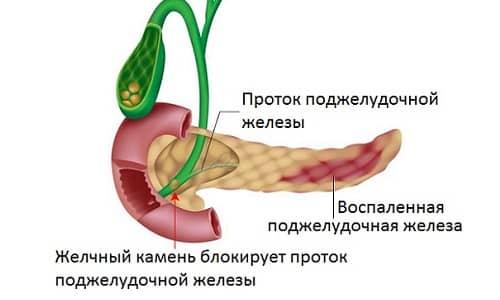 Дисфункция поджелудочной железы и желчного пузыря приводят к нарушению процесса переваривания пищи