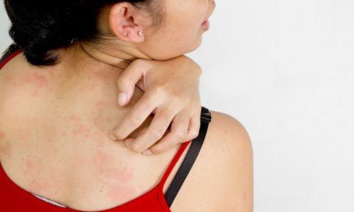 Заболевания печени и поджелудочной на начальной стадии могут проявляться кожными высыпаниями