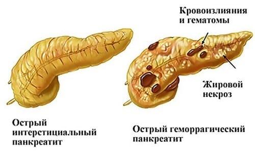 Острая стадия панкреатита во время проведения УЗИ поджелудочной железы выявляется гипоэхогенностью