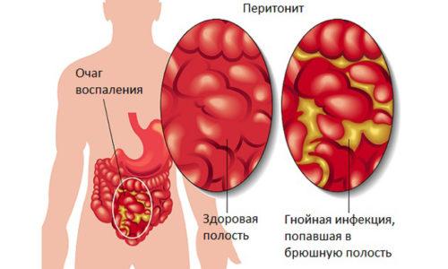 При отсутствии лечения заболевание может осложняться перитонитом
