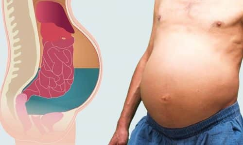 Прогрессирование рака поджелудочной железы в большинстве случаев приводит к появлению осложнений в виде асцита