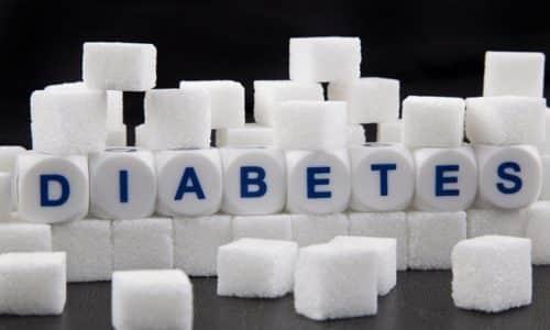 Липоматоз - явление, при котором железистая клетка замещается жировой клеткой, что характерно для сахарного диабета
