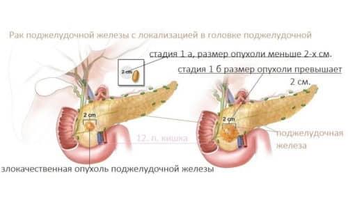 Классификация раковых образований зависит от размера и распространения в соседние ткани