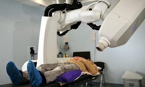 Лучевая терапия до хирургического вмешательства позволяет уменьшить объемы образования