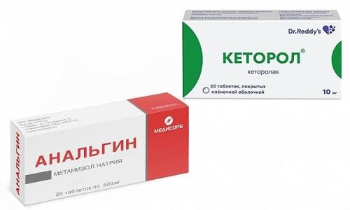 Кеторол и Анальгин эффективно устраняют головную, зубную и другие виды боли